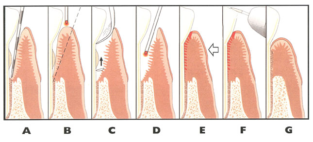 periodontal laser therapy process